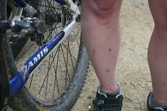 Legs staus post race