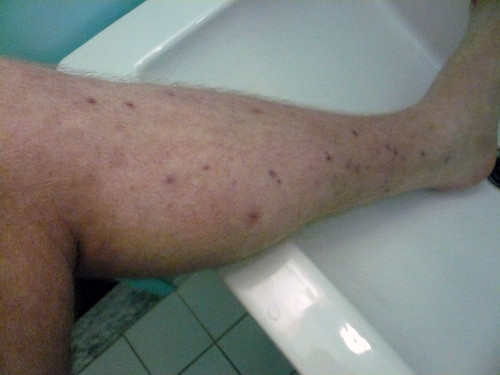 Leg Lesions