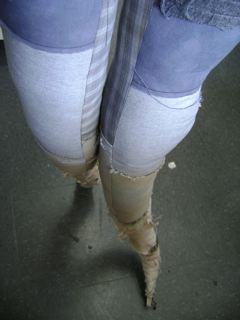 wormy legs