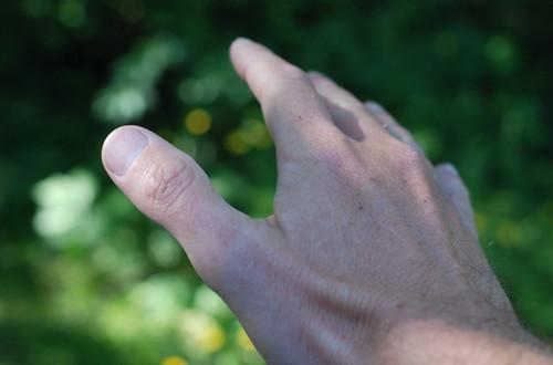 Dikke duim