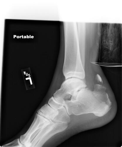 Image of a broken heel