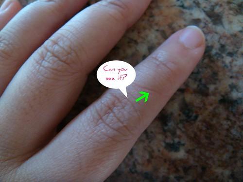 new finger crease