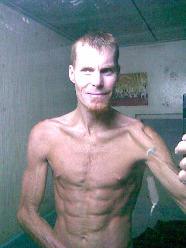 Fda banned weight loss supplement crossword