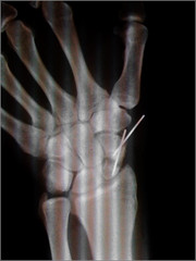 Well it's healing but that wire is causing PAIN!!! (andrewwdavies) Tags: apple broken pain arm rugby injury xray bone wrist hip fracture scar painful metacarpal carpal iphone graft scaphoid andrewwilliamdavies