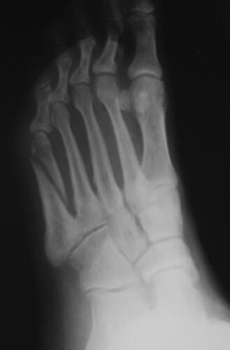 bones of foot. foot, ones; Hand and Foot