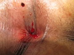 HEMORROIDES EXTERNA TROMBOSADA TROMBECTOMIA (gastroenterologiadomingoluciani) Tags: hemorroides hospitaldrdomingoluciani drmanuelcarreiro trombectomia enfermedadhemorroidal hemorroidesexternatrombosada
