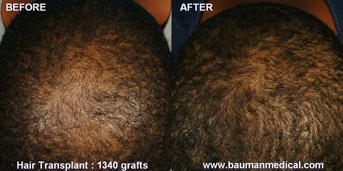 Crown/Vertex hair transplant, African-American