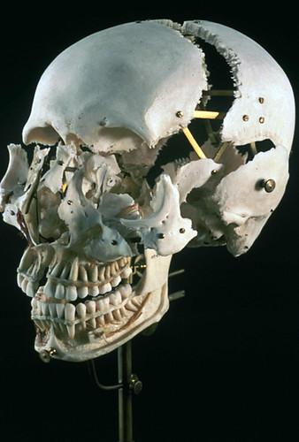 """Beuchene Skull aka """"Exploded"""" Skull"""