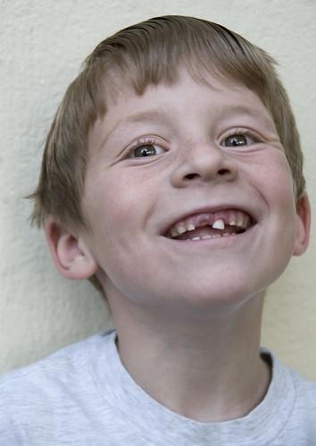Snaggle-Tooth Nicky