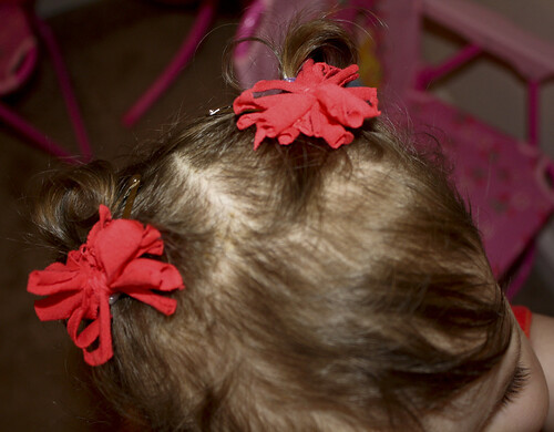 Hairbows 5