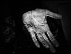 Life on the street (Leon Moss) Tags: street white black manchester hands cut homeless scar stiches