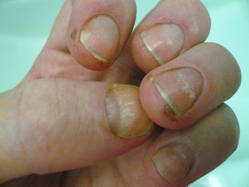 Fingernail Symptoms Pictures