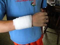 after er trip (stormmie) Tags: window er cut stitches wrist emergencyroom cutwrist wriststitches