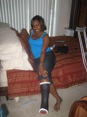 l_59d4612f9744bb66cedffdda27a01b20 (chilltown1) Tags: toes cast ankle