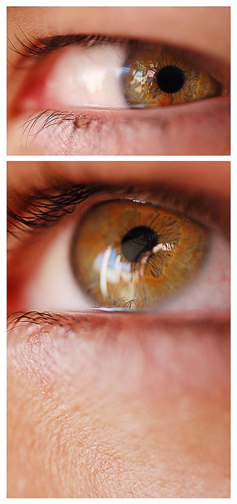 codys_eye_web.jpg