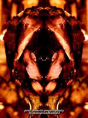 post-phimotic preputioplasty (undergroundbastard) Tags: post surgery prepuce slit undergroundbastard phimosis bilateralia phimotic preputioplasty 7936ll7939sw limiteddorsalslitwithtransverseclosure