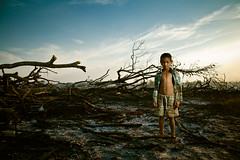 "Burned @ contest NatGeo ""La Foto de tu vida"" (Thomas Cristofoletti's stock photography) Tags: cambodia burned indigenous natgeo asiasociety cambogia mondulkiri"