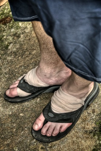 Doug's Battered Feet