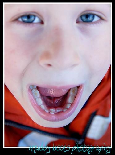 liam - teeth