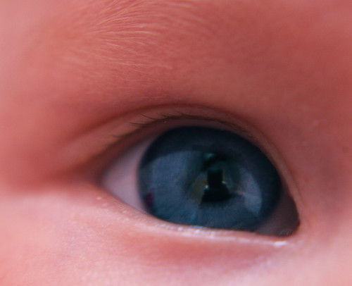 Nora's Right Eye