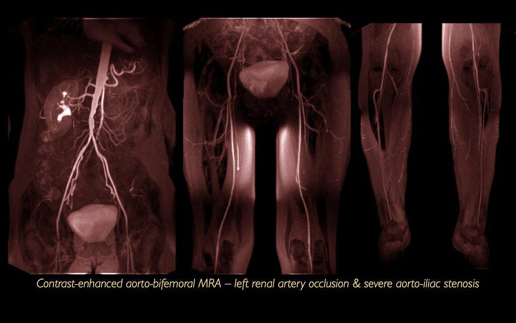 Left renal artery occlusion, abdominal aortic bifurcation stenosis, PVD, CEMRA, MRI (1/1)