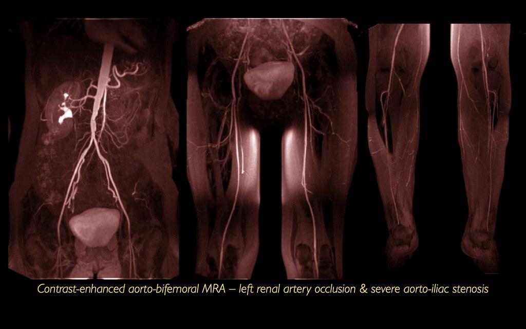 Left renal artery occlusion, abdominal aortic bifurcation stenosis, PVD, CEMRA, MRI (1/1)