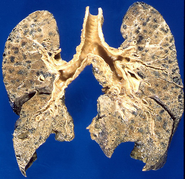emphysema centrilobular well demarcated pigmented foci of emphysema ...