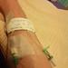IV+cannula