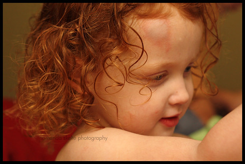 aidan bruise2