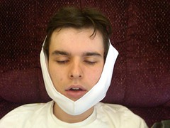 wisdom teeth out
