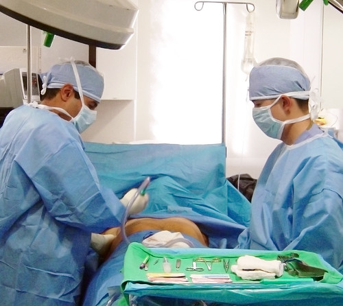 Vishal Kapoor MD in the Operating Room Performing Male Breast Reduction