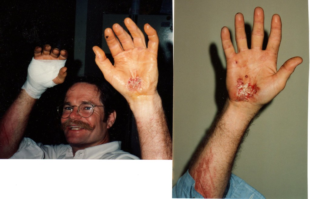 High Wheel accident Hand 'redecoration' 7-4-94