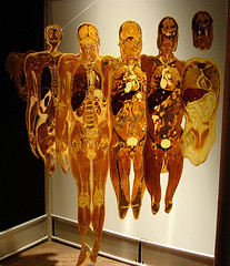 BodyWorlds Cross-section