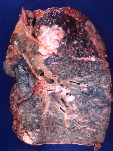 Mesothelioma Lung Cancer. asbestos lung cancer,