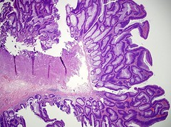 Qiao's Pathology: Colon - Tubulovillous Adenoma (Jian-Hua Qiao, MD, FCAP) Tags: microscopic colon adenoma