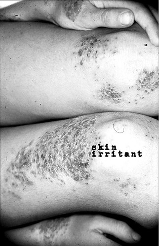 Various Artists - Skin Irritant