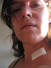 IMG_0208 (Neuro Detour) Tags: pain surgery tm steroids prednisone chronicillness experimentaltreatment melaniemiller permacath transversemyelitis raredisease neurodetour steroidacne