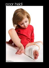 Heidi in Gips 2009-02-11_29 (tine_stone) Tags: studio heidi hurt child leg kind gipsfuss schmerz verletzung krammer 1dsmarkiii tinefoto willenig
