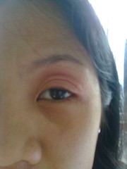 Swelling eyes bec of angioedema