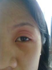 Swelling eyes bec of angioedema