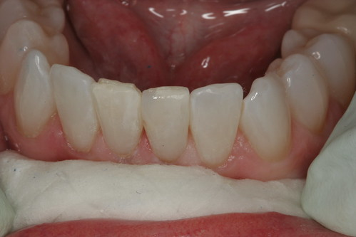 Bonded tooth