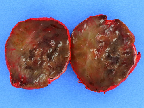 Cellular Angiofibroma (Angiomyofibroblastoma-like Tumor of Male Genital Tract)
