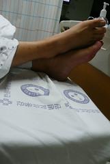 맨발의 환자