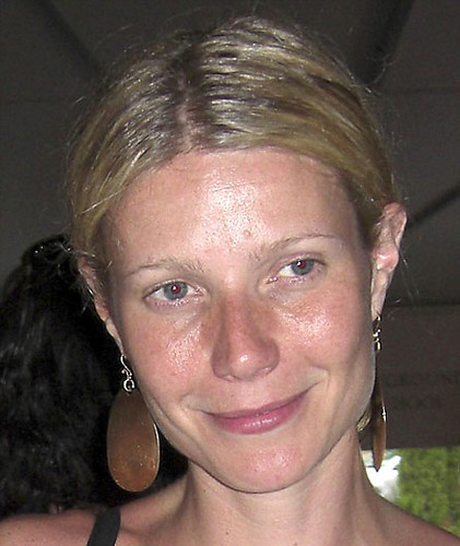 Gwyneth Paltrow acne