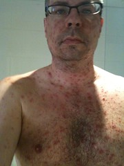 Pox Day Three (mpesce) Tags: mobile chickenpox sick pesce