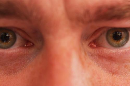 Erik's Eyes