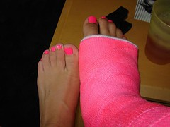 l_4c44fc05f7e93df12ab8a9edef190e6f (chilltown1) Tags: broken toes cast ankle