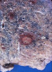 Aspergillosis, angioinvasive (Pulmonary Pathology) Tags: gross specimen pathology lung macroscopic aspergillus aspergillosis angioinvasive