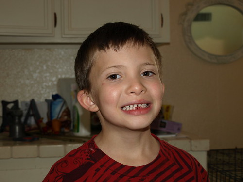 Ky had to have his two lower front teeth pulled because his adult teeth were ...