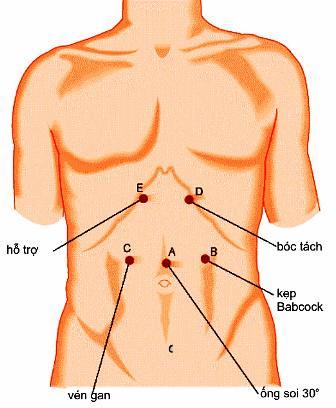 Phẫu thuật Heller qua nội soi ngả bụng kết hợp khâu cuốn phình vị bán phần